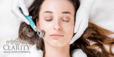 Dermal Roller Treatment in Dunfermline at Clarity House