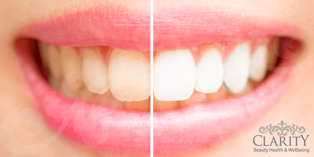Teeth Whitening in Dunfermline at Clarity House